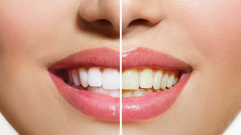 5 Best Teeth Whitening Products 2020 Top Rated Teeth Whitening